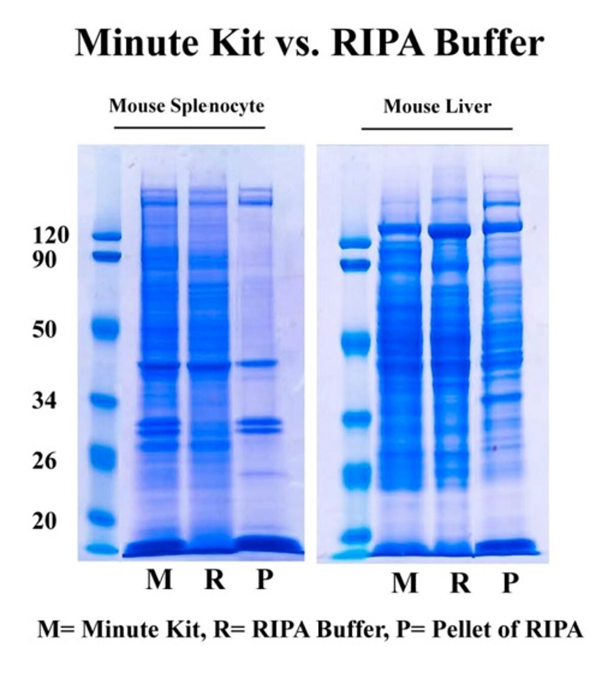 Advantages of spin column based method over RIPA buffer